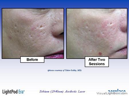 Selling Lasers For Laser Skin Resurfacing In Tampa Fl