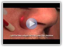 Facial Vessel Removal With LightPod Neo 1064nm Laser from Aerolase